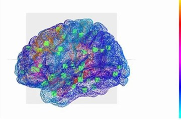 Image shows a representation of the virtual brain.