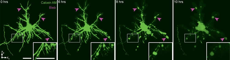 Image shows neurons images by the new technique.