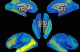 Image shows brain maps with the areas of prediction highlighted.