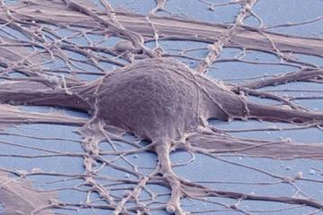 Image shows an iPSC derived neuron.