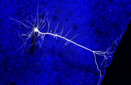 Image shows a neuron projection from the visual cortex.