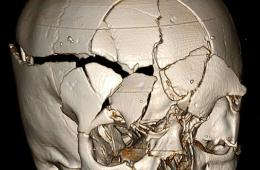 Image shows a smashed up skull.