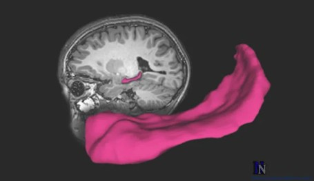 A brain with the hippocampus highlighted is shown.