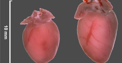 The hearts of the mice that possess more of the microRNAs 212 and 132 (on the right) are distinctly larger than the hearts of the normal mice (on the left). (Image: Kamal Chowdhury / Max Planck Institute for Biophysical Chemistry)