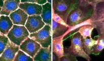 Normal cells (left) compared to when the cell ties are broken down (right). Please credit: Vaughan et al. Cell Reports.
