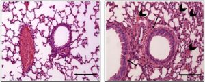The airways of male (right) and female (left) mice respond differently to anaphylactic triggers. The female response is more severe, showing more accumulation of fluids and cells around the respiratory tract (arrows). Image Credit: NIAID