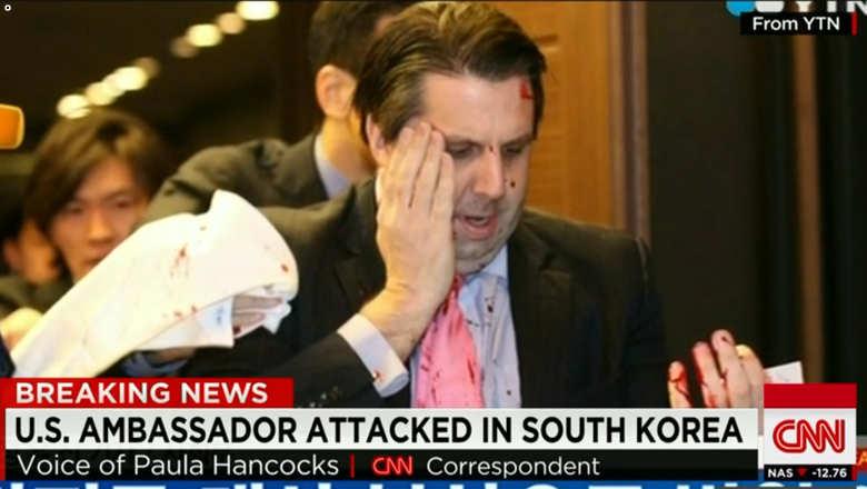 السفير الامريكي لدى كوريا