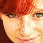How to Get Rid of Freckles? (Home Remedies)