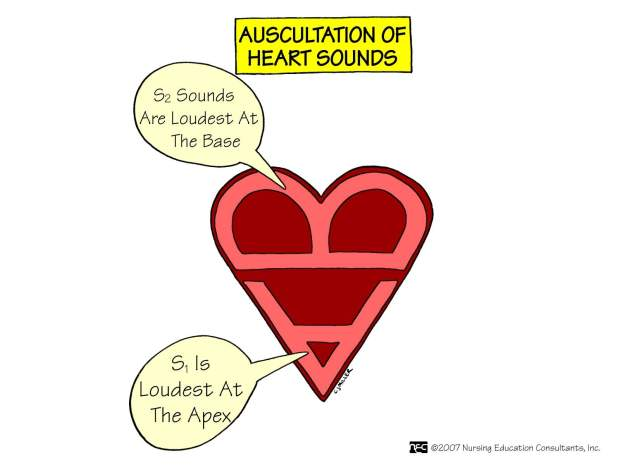 Auscultation of Heart Sounds