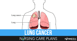 Lung-Cancer-Nursing-Care-Plans