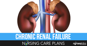 Chronic-Renal-Failure