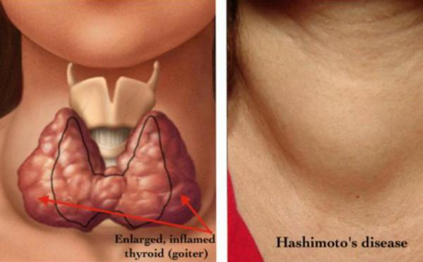 Hypothyroidism Disease with Causes and Nursing Intervention