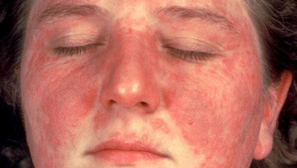 Thrombocytopenia Disease with Causes, Symptoms and Nursing Intervention