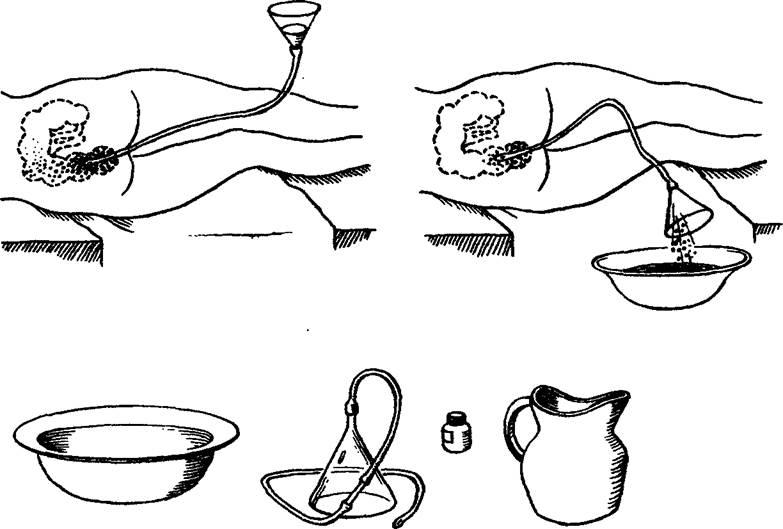 Как промыть кишечник в домашних условиях без клизмы в домашних