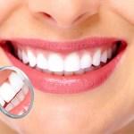 Почему образуется процесс деминерализации зубов