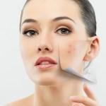 Как правильно удалить шрамы на лице