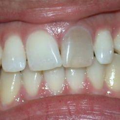 Oscurecimiento por endodoncia ANTES