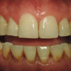 Limpieza dental ultrasónica antes