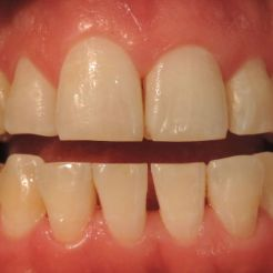 Limpieza dental ultrasónica después