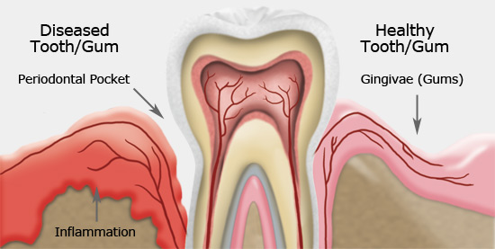 disease periodontal