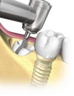 terceiro-molar