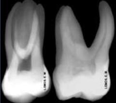 Primeiro Molar Superior - Radiograficamente