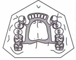 barra palatina dupla
