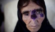 Οι νεκροί εκδικούνται τους ζωντανούς, σε Συρία και Ιράκ, με την εξάπλωση σαρκοβόρου βακτήριου