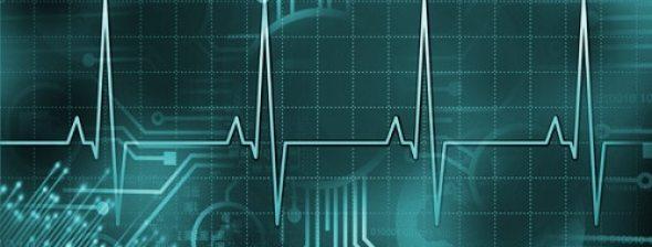 Lifeline in an electrocardiogram. Vector