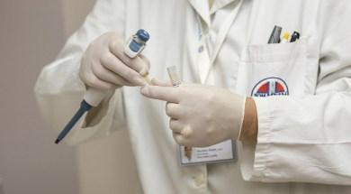łojotokowe zapalenie skóry objawy i leczenie