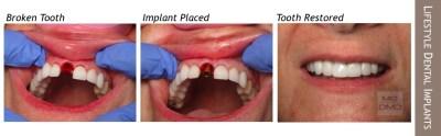 Lifestyle Dental Implants
