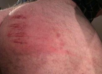 bluedoor bruises 1