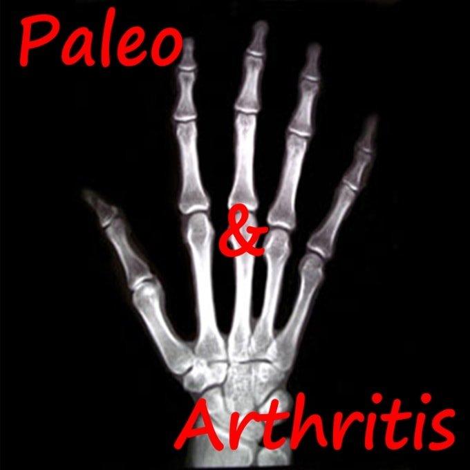 Paleo diet arthritis rheumatoid Osteoarthritis Psoriatic-min