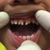 teeth children