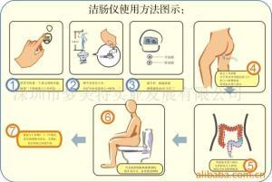 instrucciones hrydroterapia de colon