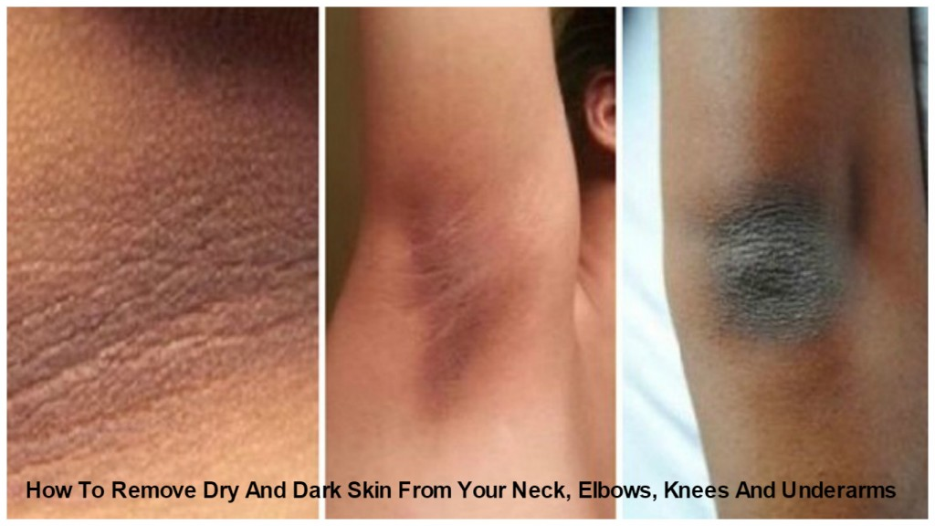How To Remove Dry And Dark Skin From Your Neck, Elbows, Knees And Underarms