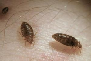 bed-bugs-on-my-skin