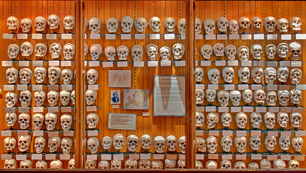 The Hyrtl skull collection.