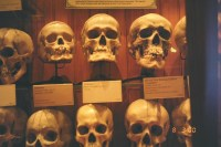 A Weird History: Dr. Thomas Dent Mütter and his peculiar museum