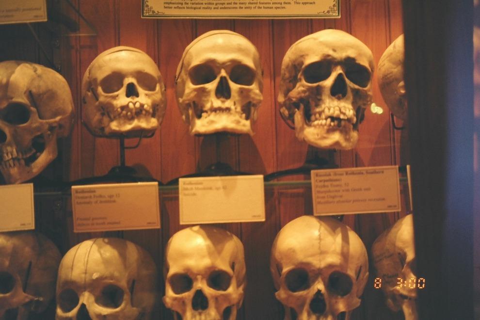 mutter-museum-skulls