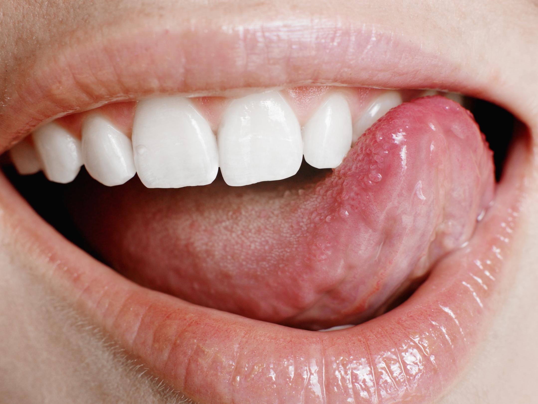 Fullsize Of Black Spots On Tongue