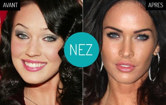 Megan-Fox-megan-avant-apres-chirurgie-rhinoplastie-nez