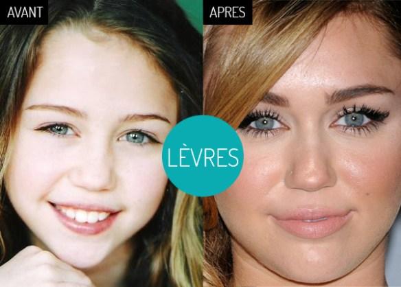 Miley-Cyrus-levres-retouche-colagen