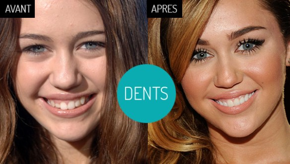 miley-cyrus-dents-avant-après-facette-porcelaine