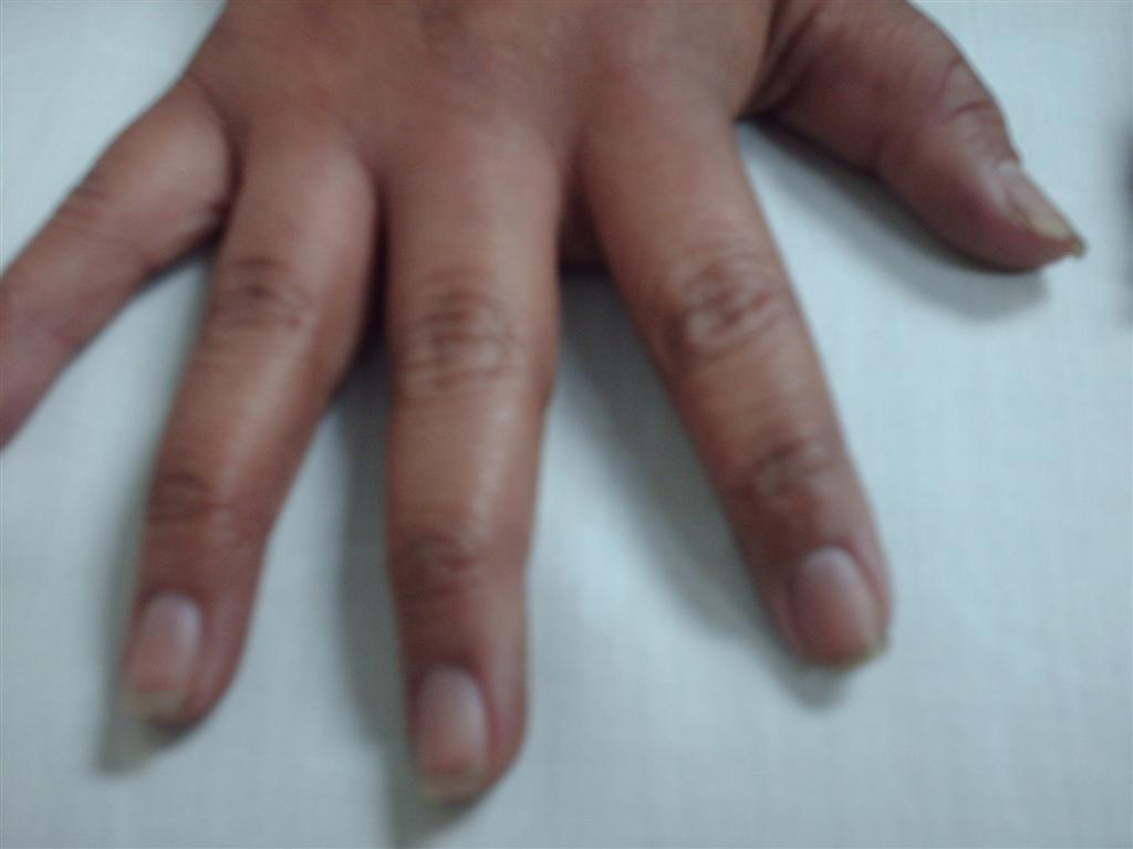 El gel de atopicheskogo de la dermatitis