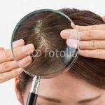 髪にボリュームがなく薄毛が気になる。頭皮を元気に!エイジングケアー!