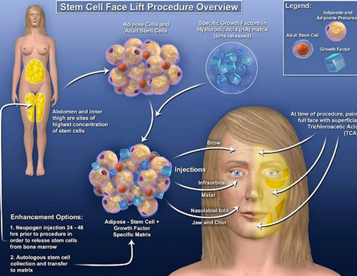 stemcell facelift bangkok thailand reviews Non Surgical Stem Cell Facelift Bangkok Prices Doctor Reviews Pictures