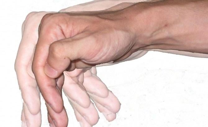 Temblor Parkinson Plena Identidad