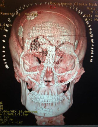 X-ray of Terrence Hinz's face after surgery, showing titanium implants