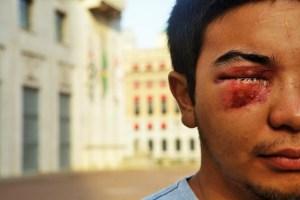Biker W., 22 anos, nova vítima de bala de borracha (Foto: Sérgio Silva, da Ponte Jornalismo)